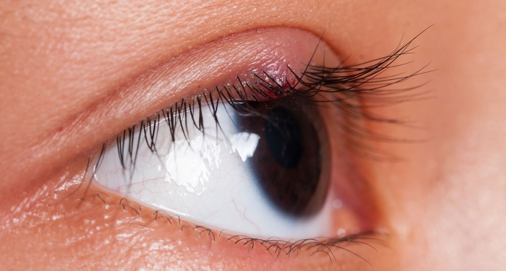 Stye in My Eye or a Chalazion - Assil Eye Institute