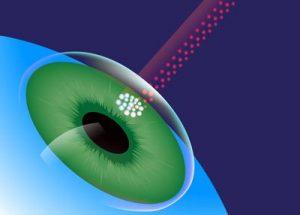 LASIK Laser Scan
