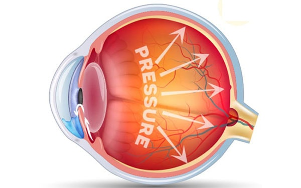 The Durysta implant for Glaucoma