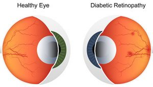 Diabetic Retinopathy vs Healthy Eye