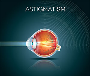 Astigmatism: causes, symptoms and treatments, Assil Eye Institute Los Angeles