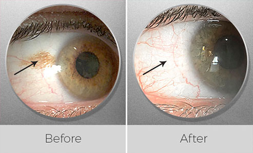 Conjunctival nevus removal surgery, before and after picture