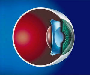 Implantable Contact Lenses