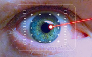 Laser eye surgery - what to expect, Assil Eye Institute