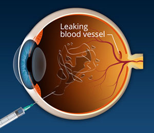 What's Macular Degeneration, Assil Eye Institute Los Angeles