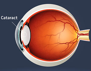 Cataract Eye Surgery, Assil Eye Institute