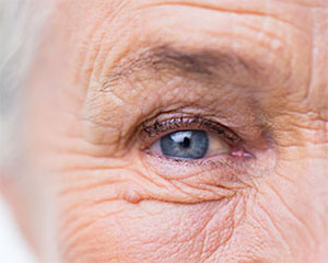 About Cataracts, Assil Eye Institute