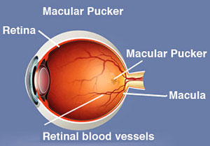 ABOUT ERM (EPIRETINAL MEMBRANE), Macular pucker, Assil Eye Institute Los Angeles