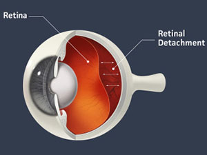 What is Retinal Detachment