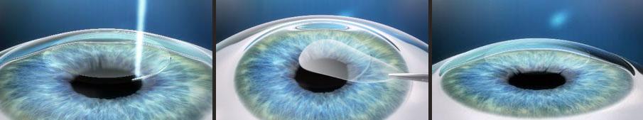 SMILE Laser Vision Correction Surgery